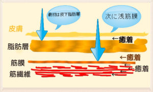 浅筋膜イメージ