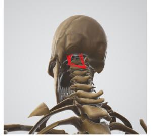 締め付けられる頭痛の原因のひとつ