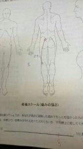 痛みの図77