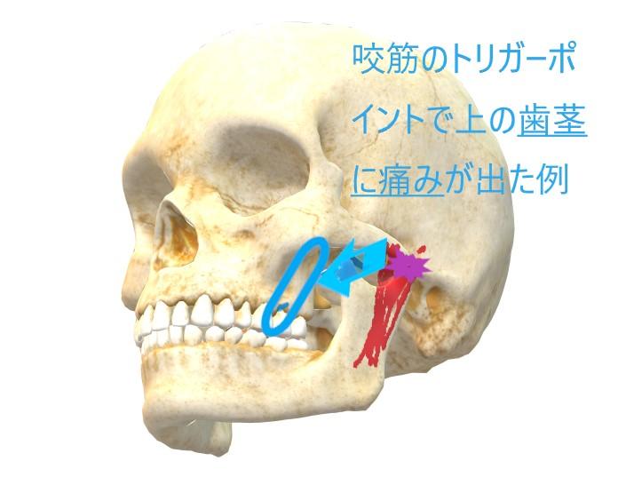 咬筋の説明